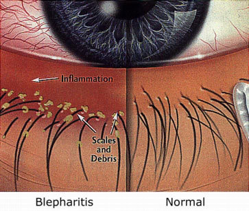 Blepharitis-compare (1)